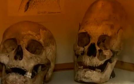 Таинственная Россия: Загадочные черепа или опыты над человечеством?